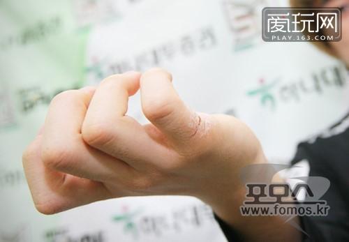 一分耕耘一份收获:世界冠军ByuN的手茧